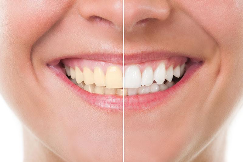 Chino Cosmetic Dentist   Teeth Whitening   Gavrila Dental